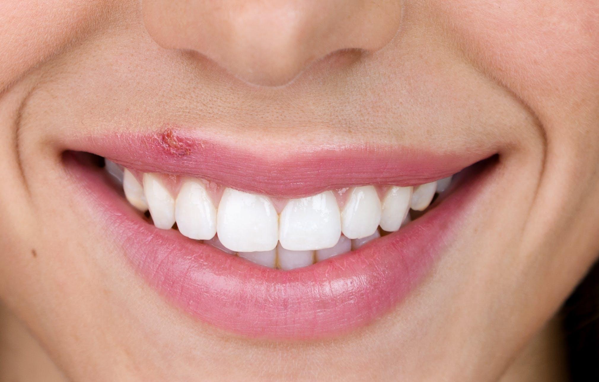 Cold sore on women's top lip