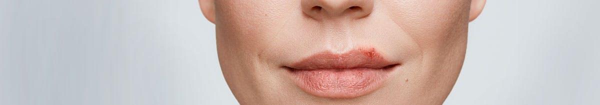 'Gros plan d'une femme ayant un feu sauvage sur la lèvre
