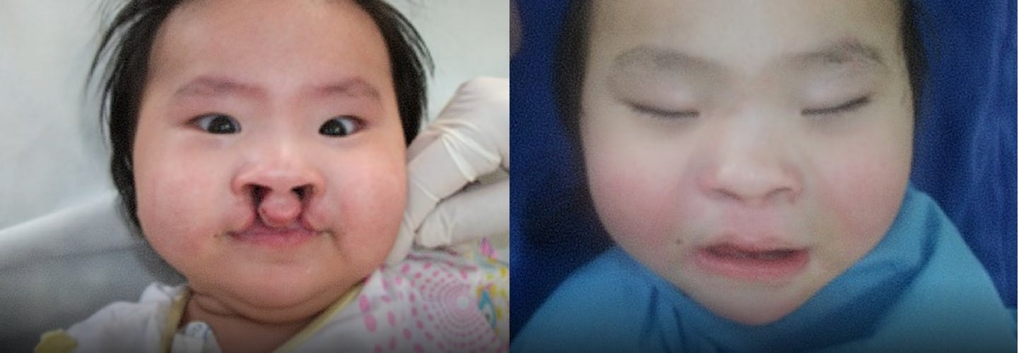 Baby before and after cleft lip surgery