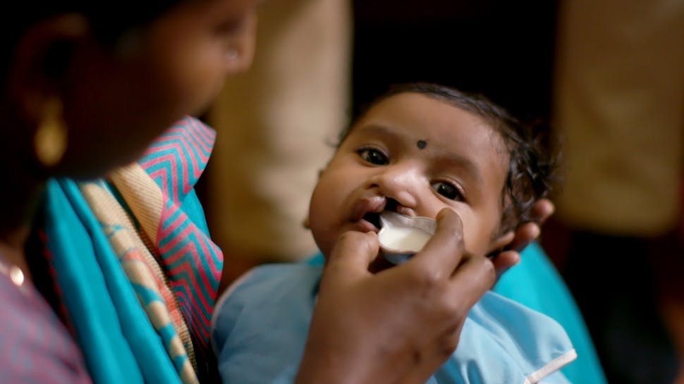 Baby with cleft lip being fed