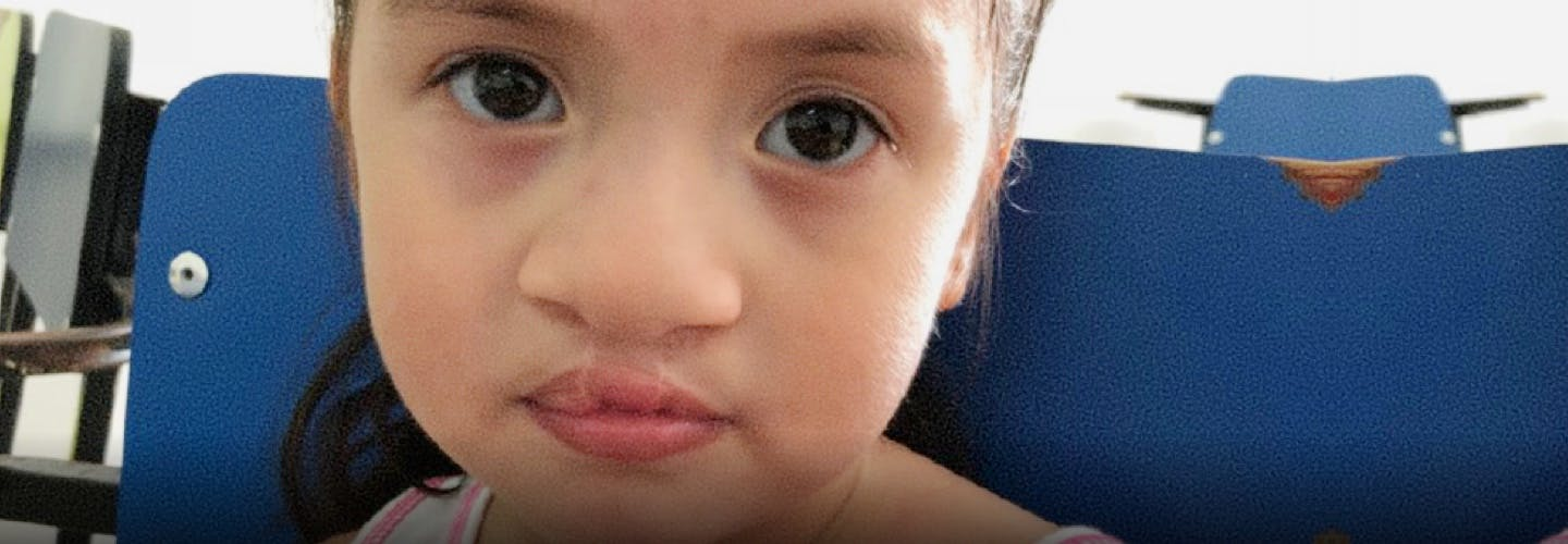 Child after cleft lip surgery